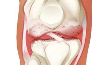 Поражение сустава при артрите