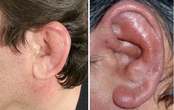 Перихондрит ушной раковины