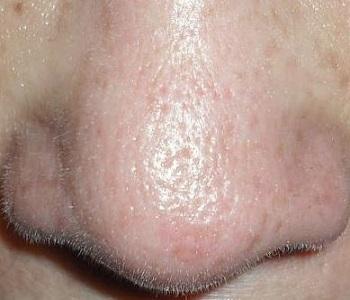 Большие поры на носу и жирная кожа