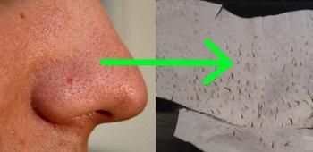 Черные точки на носу и их удаление