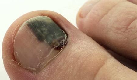 Гематома ногтя на ноге