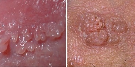 Генитальные бородавки при ВПЧ