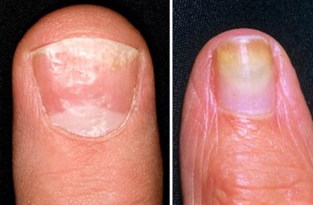 Грибковая инфекция ногтя