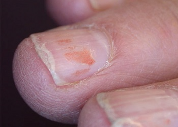 Хрупкие ногти из-за лака