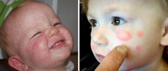 Крапивница у детей на лице