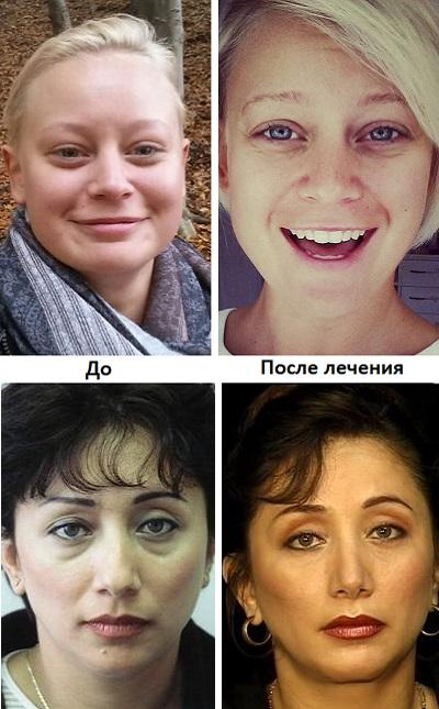 Отек лица при гипотиреозе
