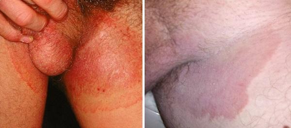 Опоясывающий дерматомикоз в паху у мужчины