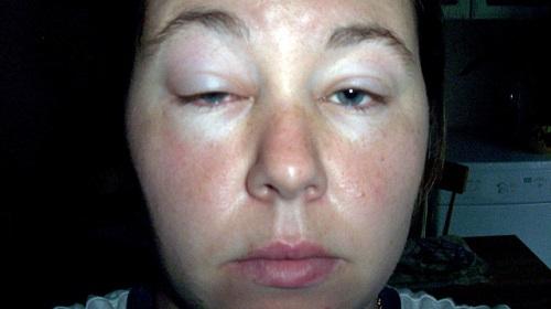 Отек лица из-за аллергии