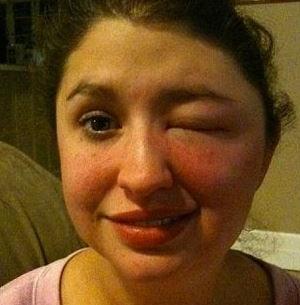 Отек лица после укуса паука