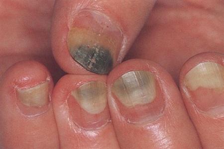 Бактериальная инфекция ногтя