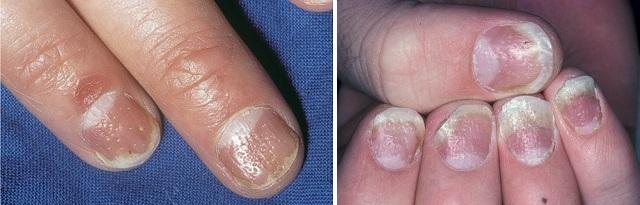 Псориаз ногтевой пластины