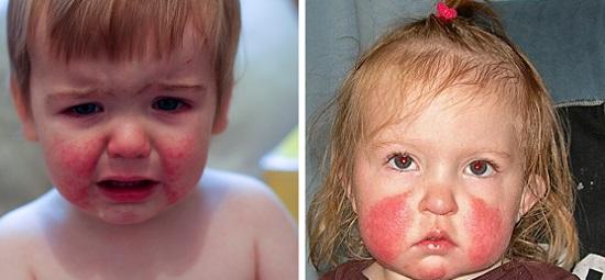 Пятая болезнь у детей на лице