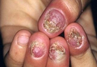 Сильное слоение ногтей из-за грибка