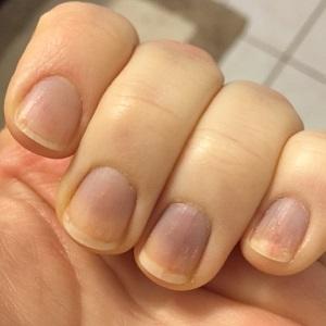 Ногти при синдроме Рейно