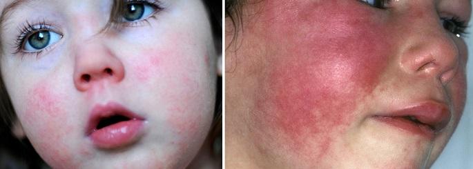 Сыпь при скарлатине у детей на лице