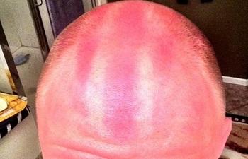 Солнечный ожог на голове
