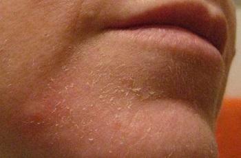 Сухая кожа шелушится на лице