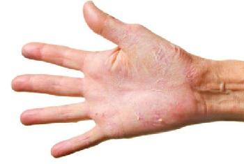 Сухая кожа шелушится на руках