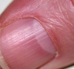 Вертикальные полосы на ногтях