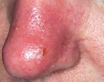 Воспаленная кожа носа из-за инфекции