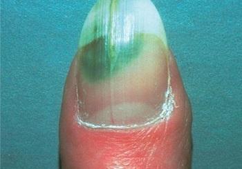 Темно-зеленое пятно на ногте из-за бактериальной инфекции