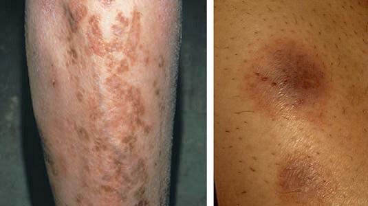 Диабетические дермопатия на ногах