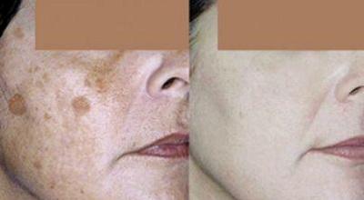 До и после лазерной терапии