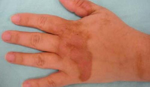 Фитофотодерматод руки