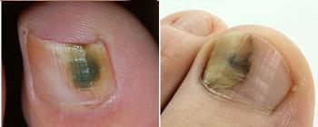 Темные пятна на ногтях при грибковой инфекции