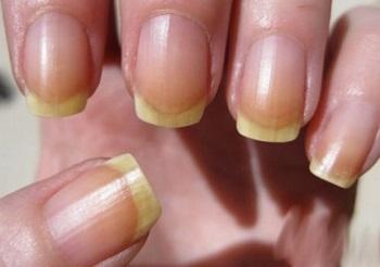 Желтуха под ногтями