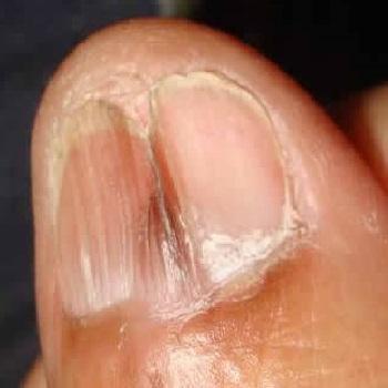 Темная полоса на ногте при красном плоском лишпае