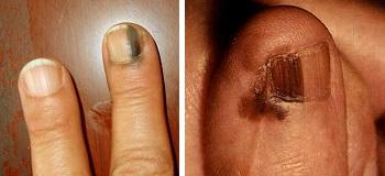 Акральная лентигинозная меланома ногтя