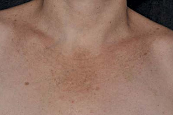 Хлоазма на шее и груди