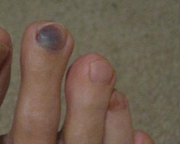 Темное пятно на ногте из-за бега