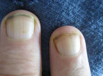Ногти при фолиеводефицитной анемии