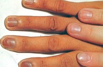 Потемневшие ногти при болезни Аддисона