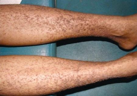Темные папулы на ногах