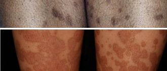Поствоспалительная гиперпигментация на ногах