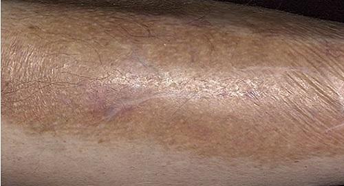 Послевоспалительная гиперпигментация