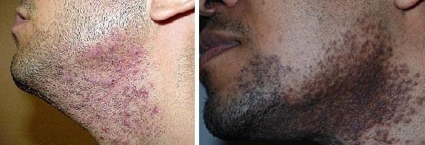 Темные пятна после бритья