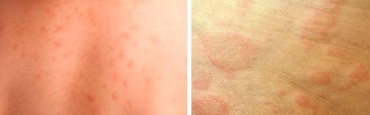 Сыпь при сенной лихорадке
