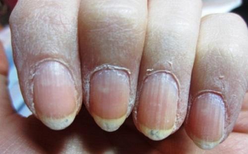 Сухие кутикулы и кожа вокруг ногтей
