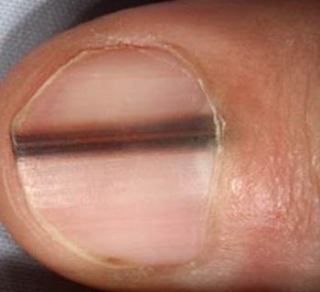 Темная линия на ногте