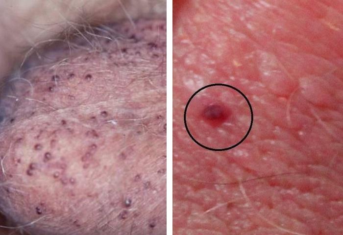 красные пупырышки на члене при болезни Фордайса