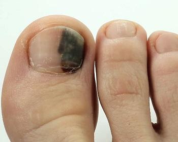 Травмированный потемневший ноготь