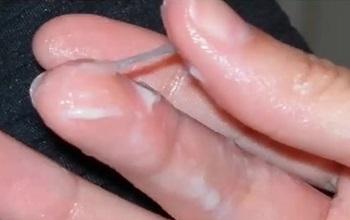Нормальные тянущиеся вагинальные выделения