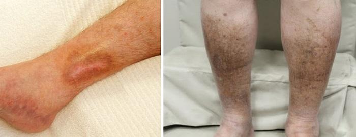 Венозный стаз на ногах