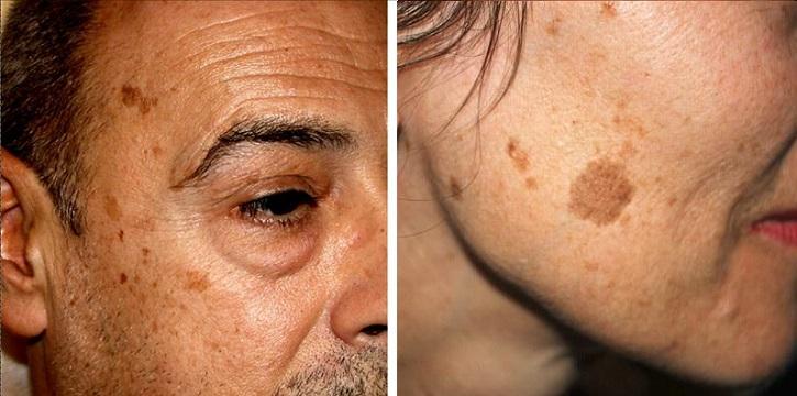 Возрастные пятна на лице у мужчины и женщины