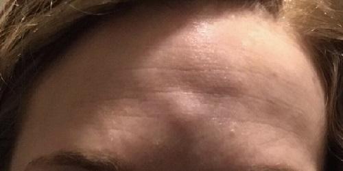 Шишки на лбу при аллергии