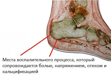Анкилозирующий спондилит вокруг пяточной кости